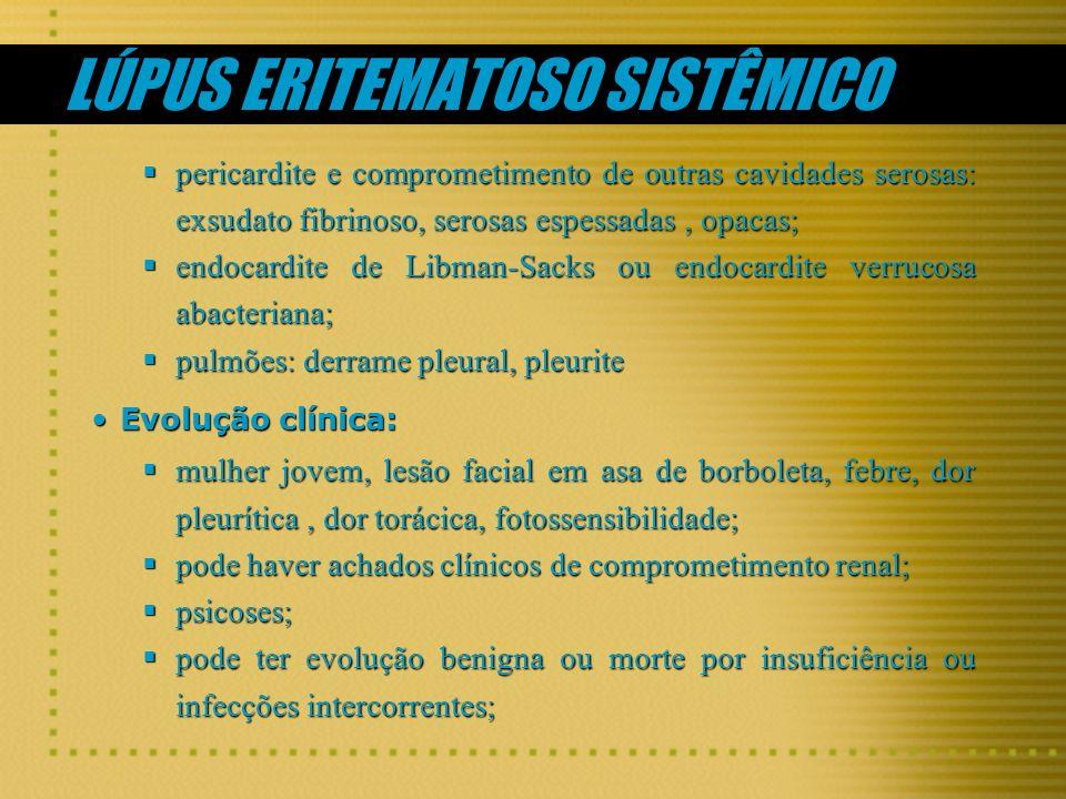 LÚPUS ERITEMATOSO SISTÊMICO pericardite e comprometimento de outras cavidades serosas: exsudato fibrinoso, serosas espessadas, opacas; pericardite e c