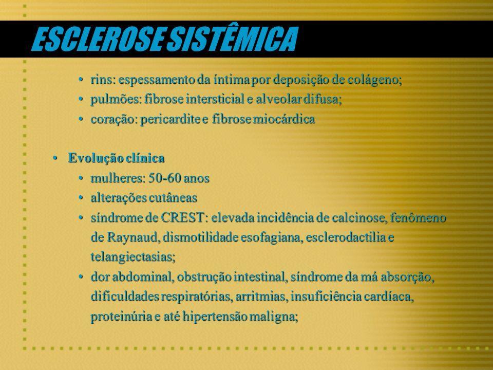 ESCLEROSE SISTÊMICA rins: espessamento da íntima por deposição de colágeno;rins: espessamento da íntima por deposição de colágeno; pulmões: fibrose in