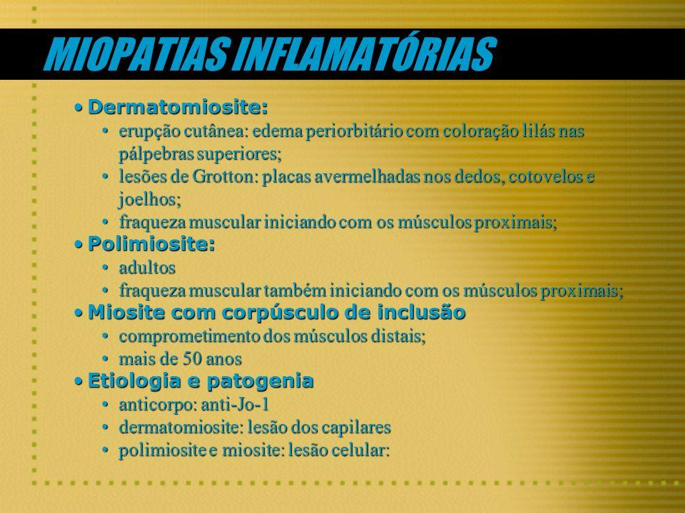MIOPATIAS INFLAMATÓRIAS Dermatomiosite:Dermatomiosite: erupção cutânea: edema periorbitário com coloração lilás nas pálpebras superiores;erupção cutân