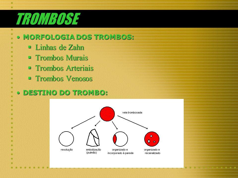 TROMBOSE MORFOLOGIA DOS TROMBOS:MORFOLOGIA DOS TROMBOS: Linhas de Zahn Linhas de Zahn Trombos Murais Trombos Murais Trombos Arteriais Trombos Arteriai