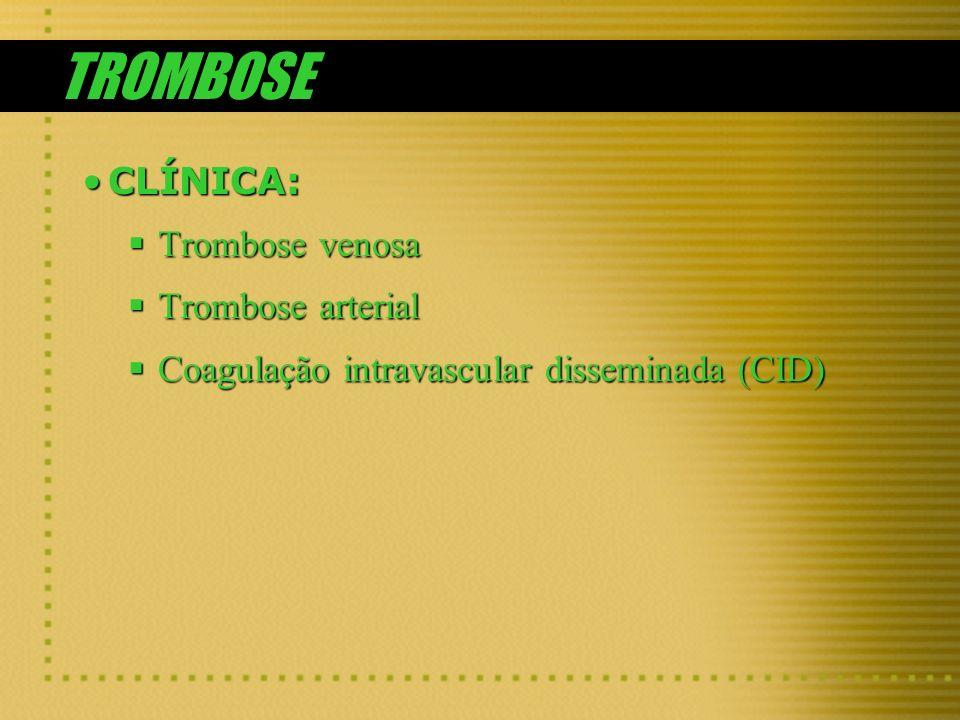 TROMBOSE CLÍNICA:CLÍNICA: Trombose venosa Trombose venosa Trombose arterial Trombose arterial Coagulação intravascular disseminada (CID) Coagulação in