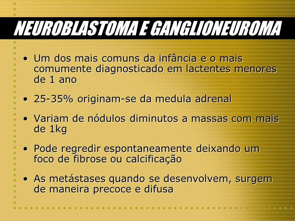 NEUROBLASTOMA E GANGLIONEUROMA Um dos mais comuns da infância e o mais comumente diagnosticado em lactentes menores de 1 anoUm dos mais comuns da infâ