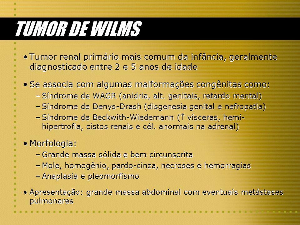 TUMOR DE WILMS Tumor renal primário mais comum da infância, geralmente diagnosticado entre 2 e 5 anos de idadeTumor renal primário mais comum da infân