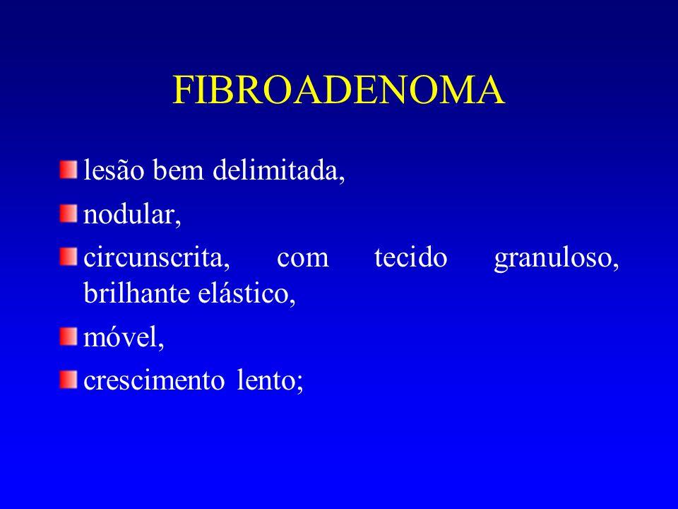 FIBROADENOMA lesão bem delimitada, nodular, circunscrita, com tecido granuloso, brilhante elástico, móvel, crescimento lento;