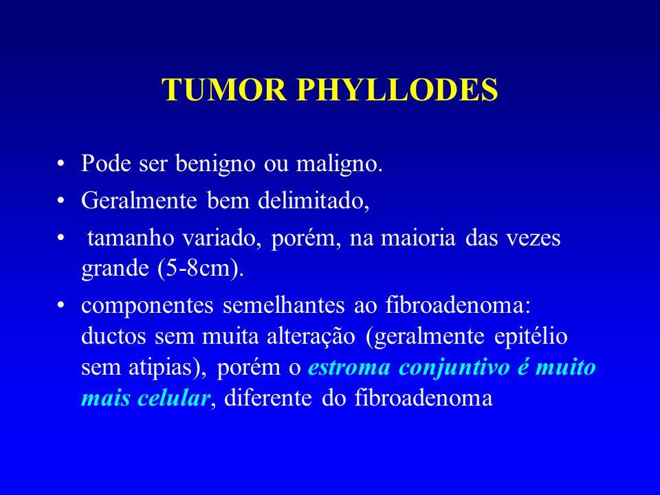 TUMOR PHYLLODES Pode ser benigno ou maligno. Geralmente bem delimitado, tamanho variado, porém, na maioria das vezes grande (5-8cm). componentes semel