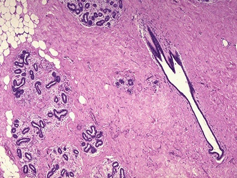 CARCINOMA MEDULAR bom prognóstico, comportamento biológico menos agressivo; lesão bem delimitada de tamanho variado, sem padrão infiltrativo; tecido homogêneo, friável, pois não faz muita reação desmoplásica (tem mais céls por isso é chamado medular); ao MO: não forma ductos, apenas maçicos de céls poligonais de aspecto sincicial com nucléolo bem evidente, cromatina frouxa, com infiltrado linfodesmoplásico associado.