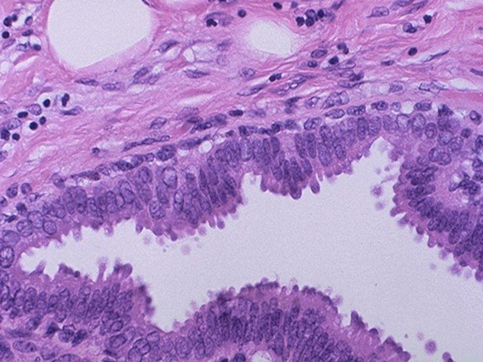 ALTERAÇÃO FIBROCÍSTICA a partir da segunda década extendendo-se a peri-menopausa.