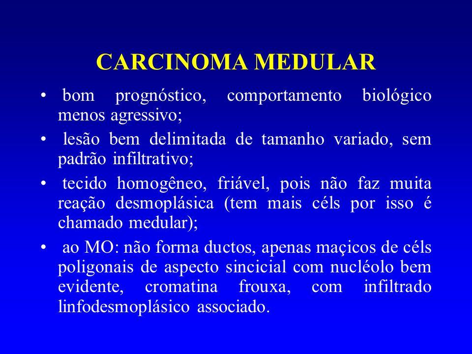 CARCINOMA MEDULAR bom prognóstico, comportamento biológico menos agressivo; lesão bem delimitada de tamanho variado, sem padrão infiltrativo; tecido h