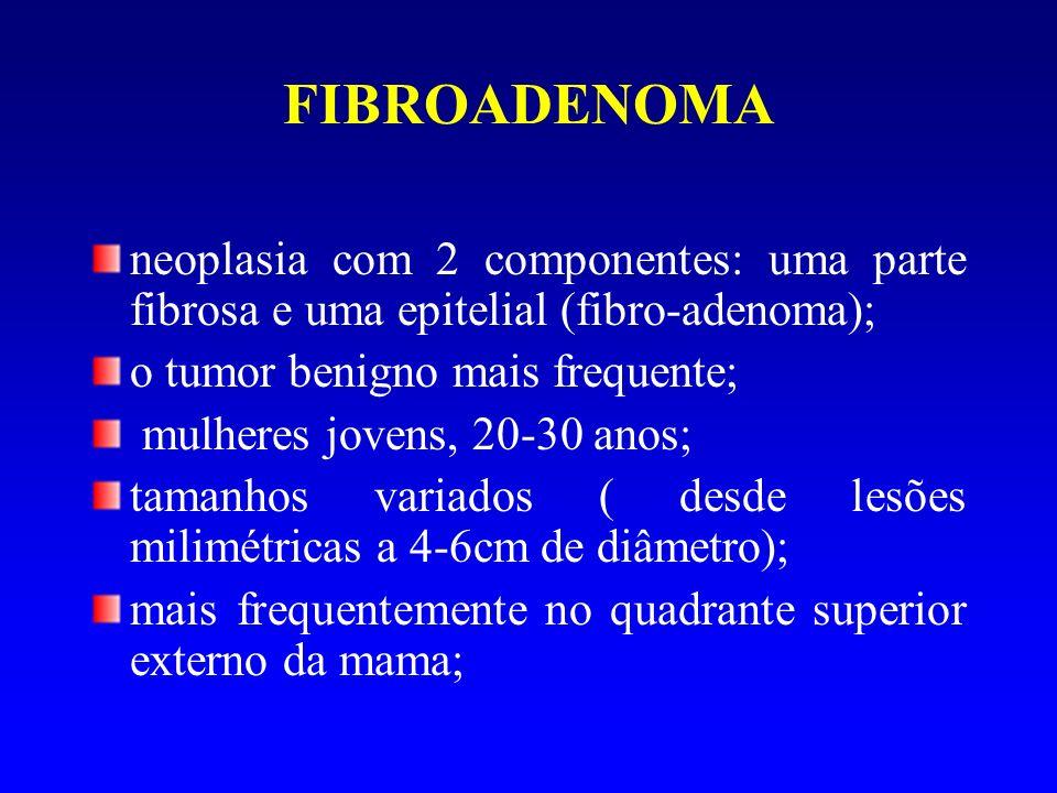 FIBROADENOMA neoplasia com 2 componentes: uma parte fibrosa e uma epitelial (fibro-adenoma); o tumor benigno mais frequente; mulheres jovens, 20-30 an