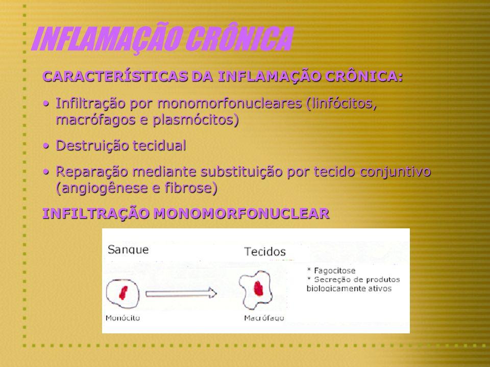 INFLAMAÇÃO CRÔNICA CARACTERÍSTICAS DA INFLAMAÇÃO CRÔNICA: Infiltração por monomorfonucleares (linfócitos, macrófagos e plasmócitos)Infiltração por mon