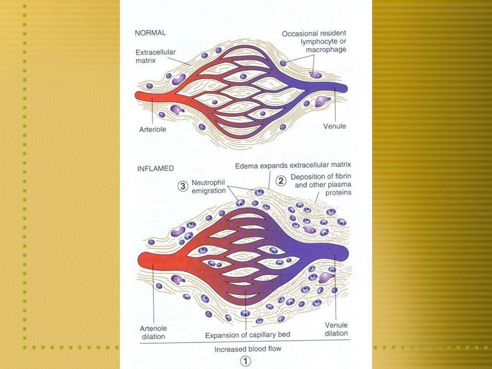 INFLAMAÇÃO AGUDA 3Eventos celulares: Diapedese leucocitária e fagocitose Marginação leucocitáriaMarginação leucocitária RolagemRolagem AdesãoAdesão Diapedese leucocitáriaDiapedese leucocitária QuimiotaxiaQuimiotaxia Ativação leucocitáriaAtivação leucocitária (vide figura a seguir)