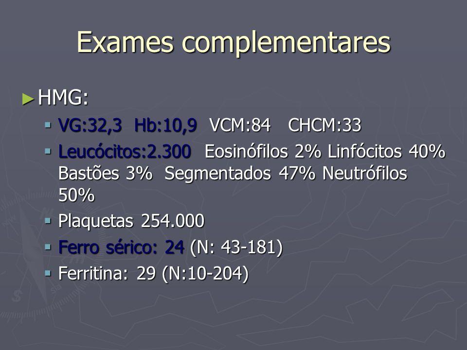 Exames complementares HMG: HMG: VG:32,3 Hb:10,9 VCM:84 CHCM:33 VG:32,3 Hb:10,9 VCM:84 CHCM:33 Leucócitos:2.300 Eosinófilos 2% Linfócitos 40% Bastões 3