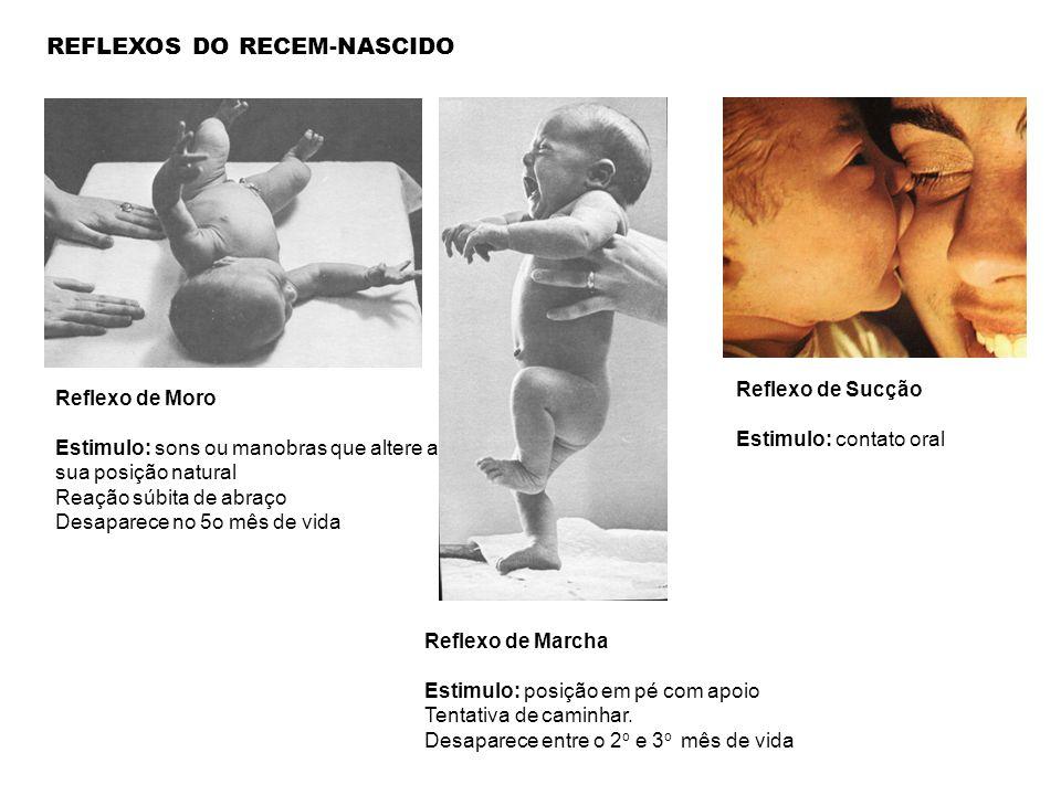 Reflexo de Moro Estimulo: sons ou manobras que altere a sua posição natural Reação súbita de abraço Desaparece no 5o mês de vida REFLEXOS DO RECEM-NAS