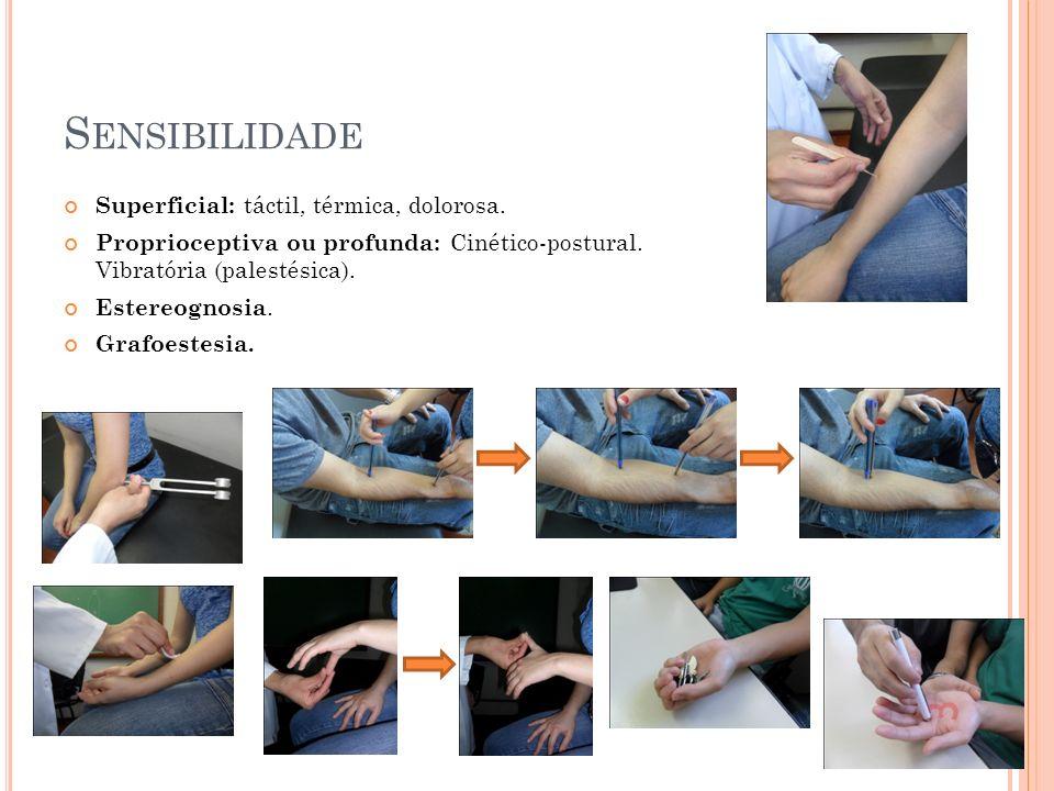 S ENSIBILIDADE Superficial: táctil, térmica, dolorosa. Proprioceptiva ou profunda: Cinético-postural. Vibratória (palestésica). Estereognosia. Grafoes