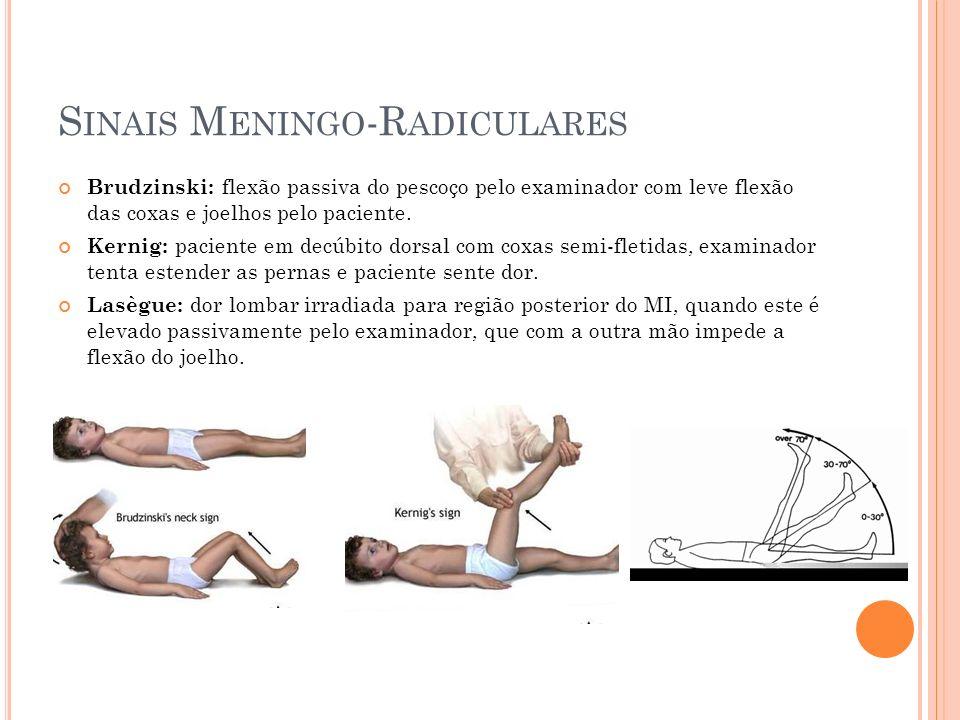 S INAIS M ENINGO -R ADICULARES Brudzinski: flexão passiva do pescoço pelo examinador com leve flexão das coxas e joelhos pelo paciente. Kernig: pacien