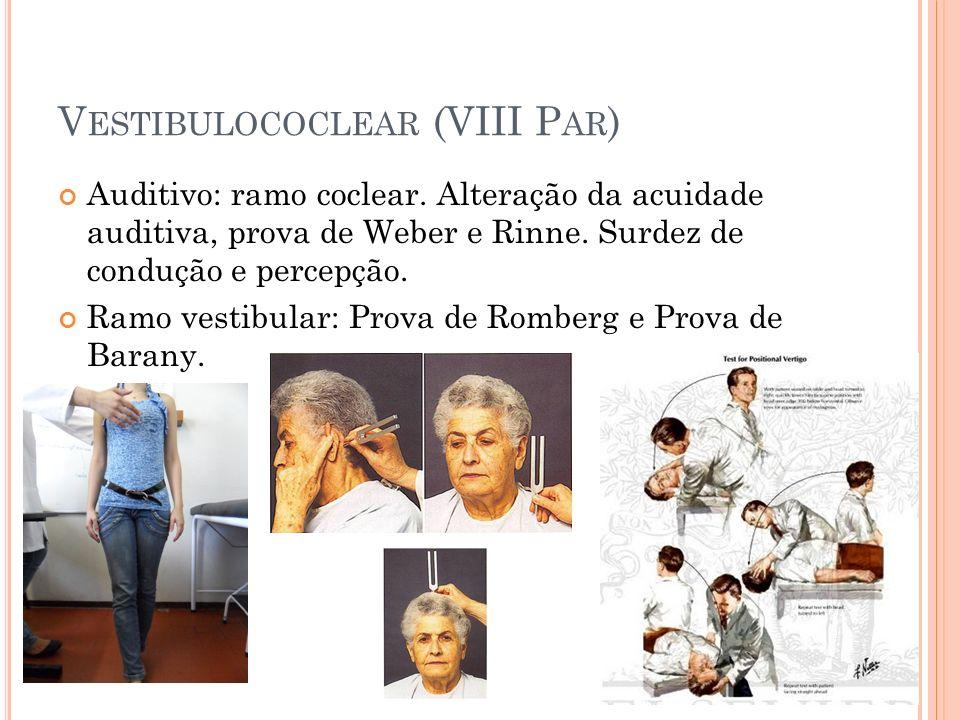 V ESTIBULOCOCLEAR (VIII P AR ) Auditivo: ramo coclear. Alteração da acuidade auditiva, prova de Weber e Rinne. Surdez de condução e percepção. Ramo ve