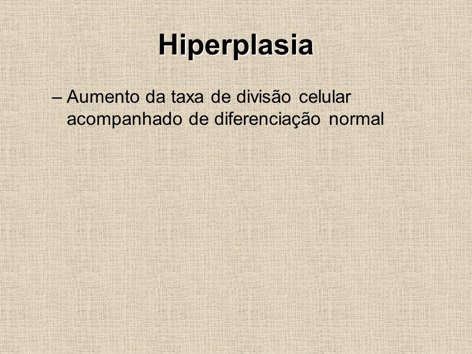 Hiperplasia –Aumento da taxa de divisão celular acompanhado de diferenciação normal