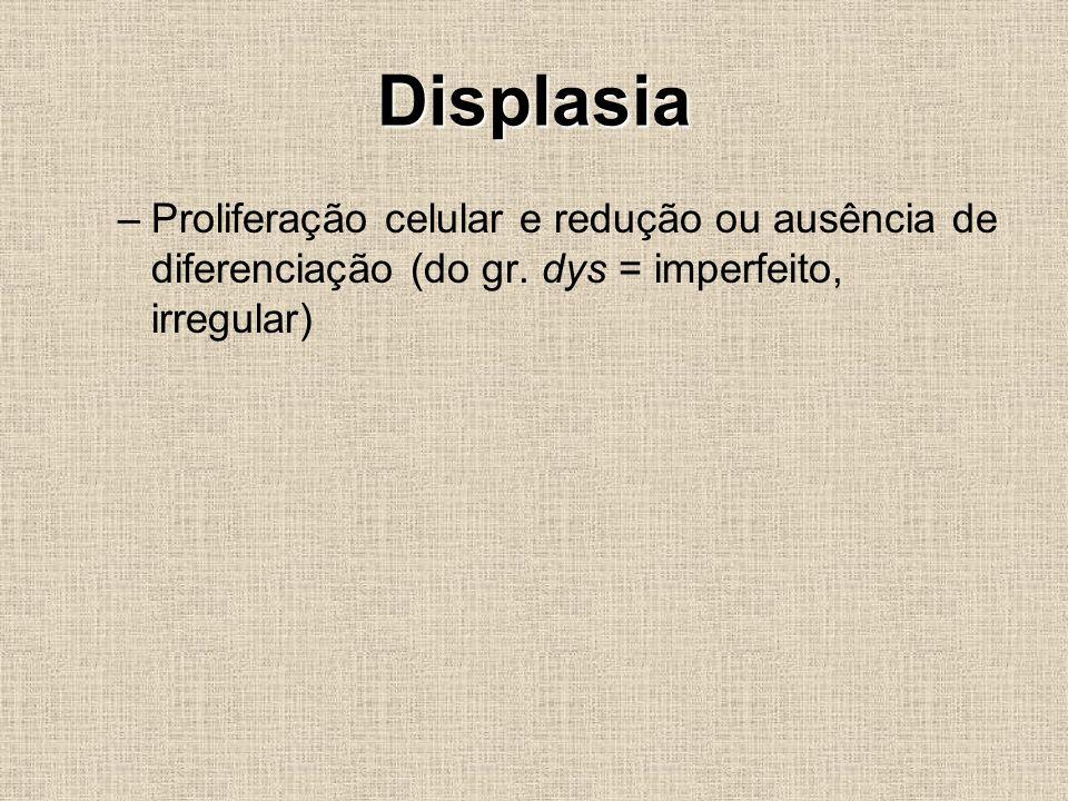 Displasia –Proliferação celular e redução ou ausência de diferenciação (do gr. dys = imperfeito, irregular)