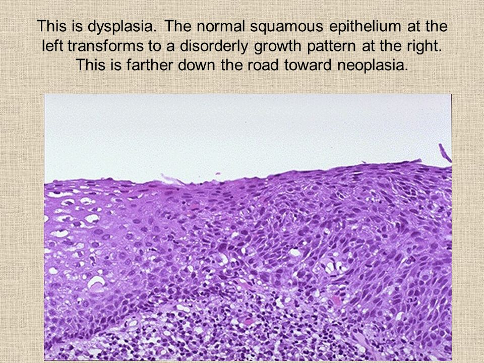 This is dysplasia. The normal squamous epithelium at the left transforms to a disorderly growth pattern at the right. This is farther down the road to