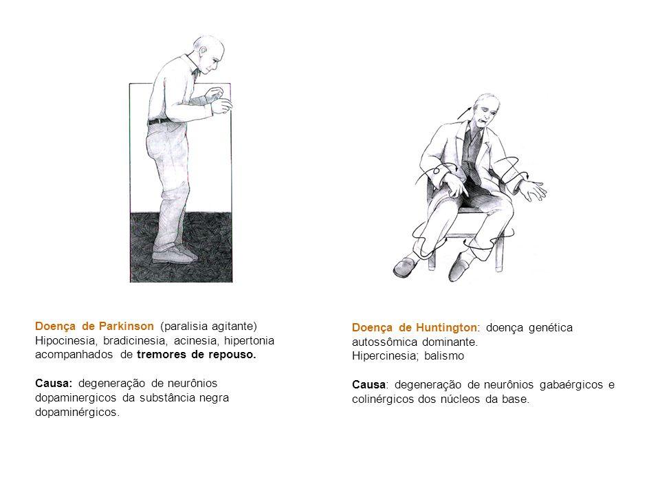Doença de Parkinson (paralisia agitante) Hipocinesia, bradicinesia, acinesia, hipertonia acompanhados de tremores de repouso. Causa: degeneração de ne