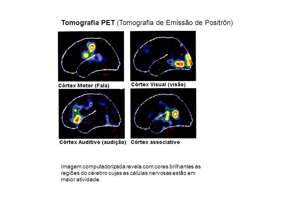 Imagem computadorizada revela com cores brilhantes as regiões do cérebro cujas as células nervosas estão em maior atividade. Tomografia PET (Tomografi