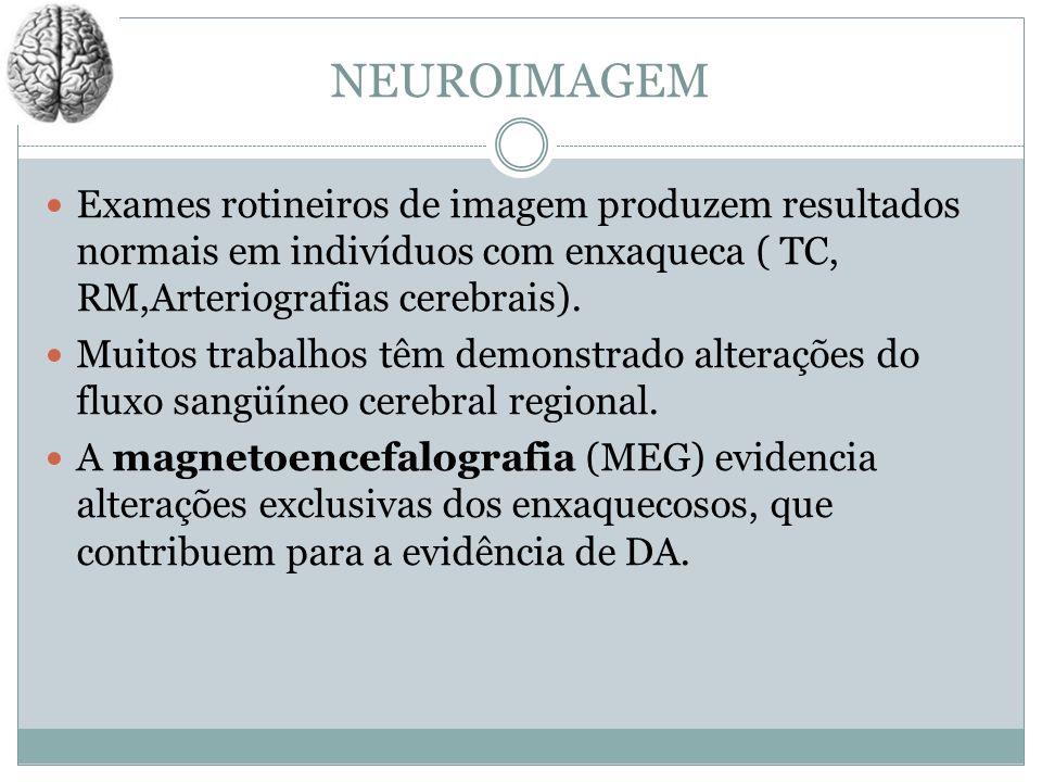 NEUROIMAGEM Exames rotineiros de imagem produzem resultados normais em indivíduos com enxaqueca ( TC, RM,Arteriografias cerebrais). Muitos trabalhos t
