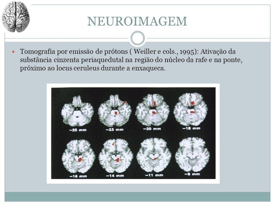 NEUROIMAGEM Tomografia por emissão de prótons ( Weiller e cols., 1995): Ativação da substância cinzenta periaquedutal na região do núcleo da rafe e na