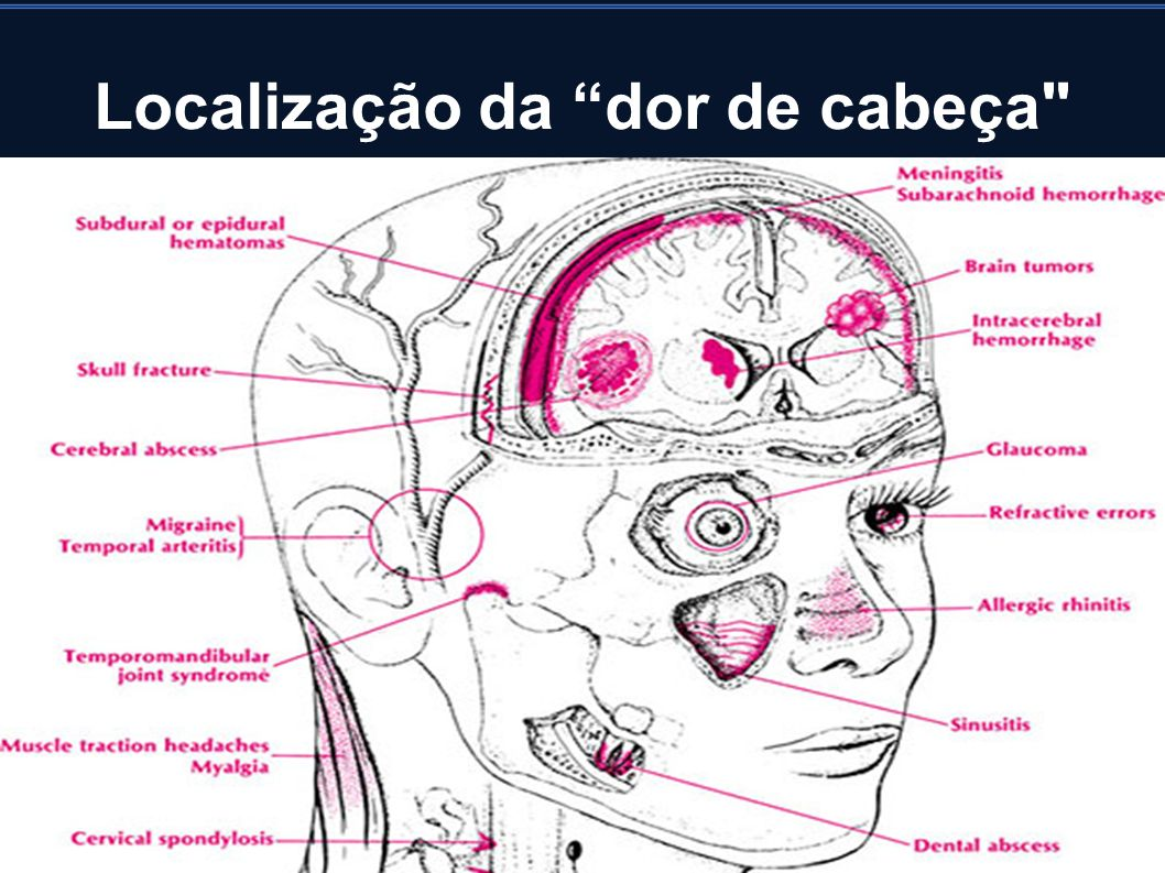 Conceito Cefaléia primária: cefaléia crônica, de apresentação episódica ou contínua e de natureza disfuncional, o que remete a uma não participação de processos estruturais na etiologia da dor.