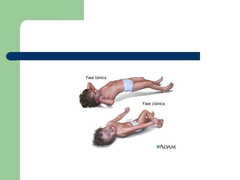 Para se notar que uma convulsão parcial se generalizou, observar: - Lembrança da aura (sintomas psiquiátricos) - Déficit neurológico unilateral durante o pós ictus.