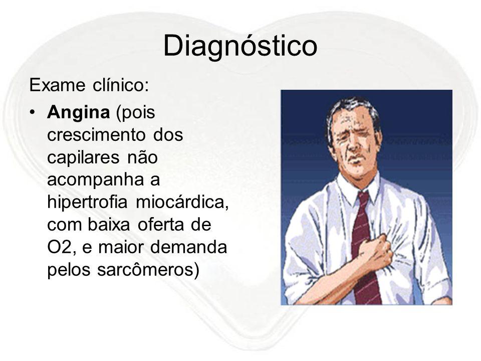 Diagnóstico Exame clínico: Angina (pois crescimento dos capilares não acompanha a hipertrofia miocárdica, com baixa oferta de O2, e maior demanda pelo