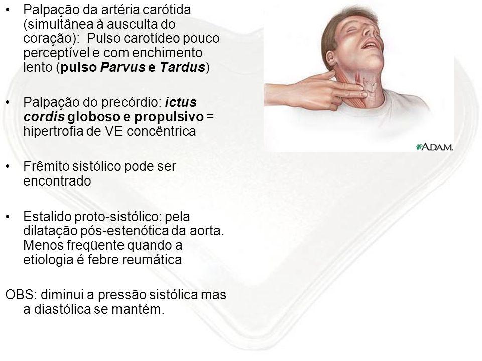 Palpação da artéria carótida (simultânea à ausculta do coração): Pulso carotídeo pouco perceptível e com enchimento lento (pulso Parvus e Tardus) Palp