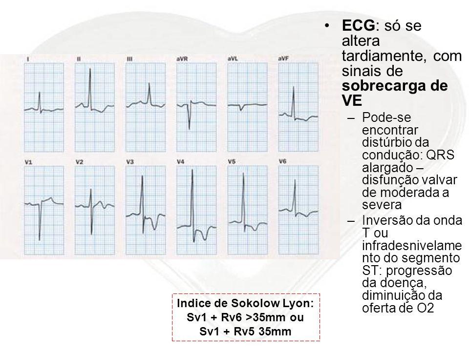 ECG: só se altera tardiamente, com sinais de sobrecarga de VE –Pode-se encontrar distúrbio da condução: QRS alargado – disfunção valvar de moderada a