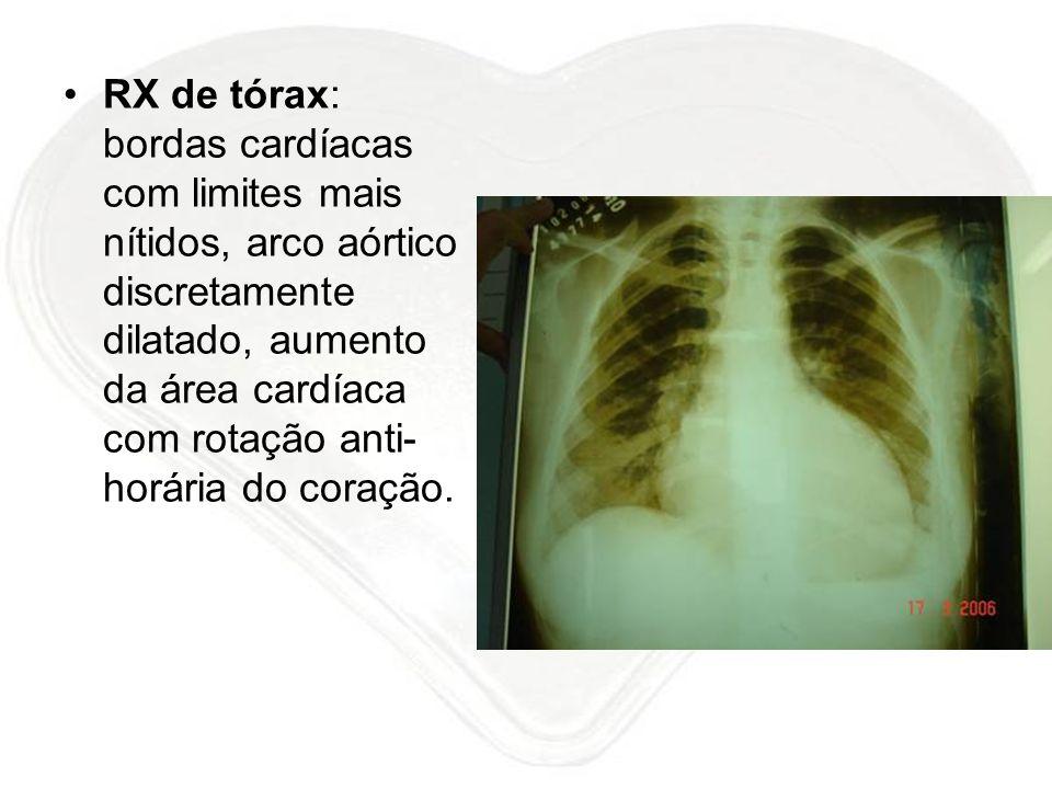 RX de tórax: bordas cardíacas com limites mais nítidos, arco aórtico discretamente dilatado, aumento da área cardíaca com rotação anti- horária do cor