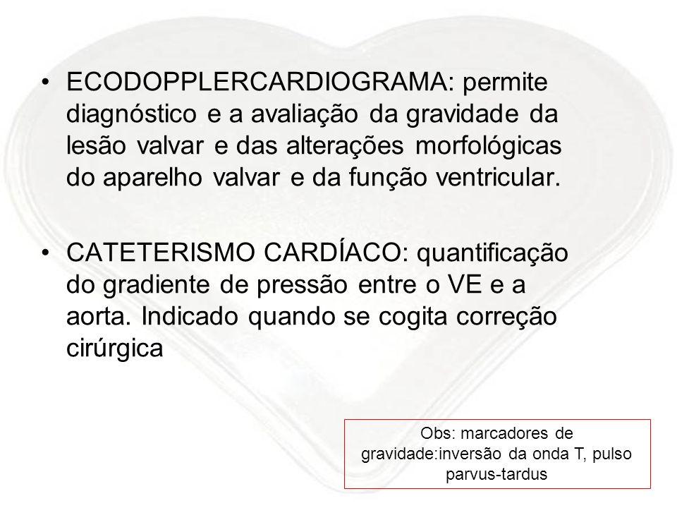 ECODOPPLERCARDIOGRAMA: permite diagnóstico e a avaliação da gravidade da lesão valvar e das alterações morfológicas do aparelho valvar e da função ven