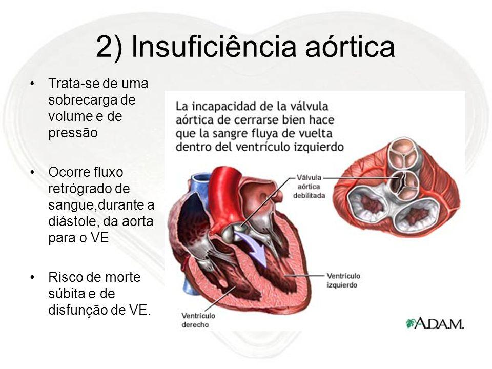 2) Insuficiência aórtica Trata-se de uma sobrecarga de volume e de pressão Ocorre fluxo retrógrado de sangue,durante a diástole, da aorta para o VE Ri