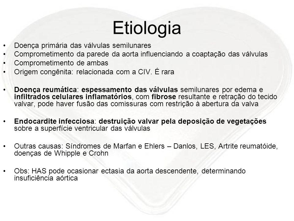 Etiologia Doença primária das válvulas semilunares Comprometimento da parede da aorta influenciando a coaptação das válvulas Comprometimento de ambas