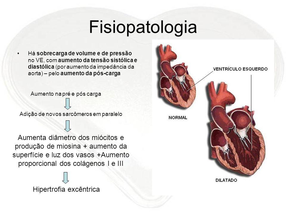 Fisiopatologia Há sobrecarga de volume e de pressão no VE, com aumento da tensão sistólica e diastólica (por aumento da impedância da aorta) – pelo au