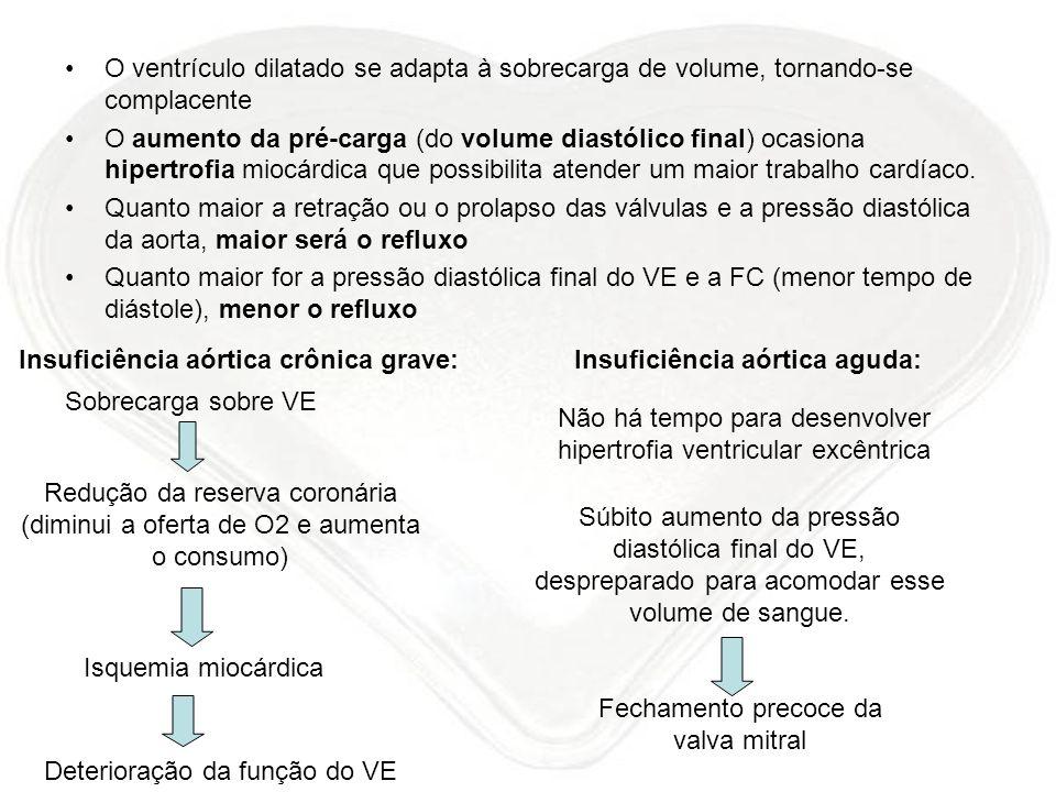 O ventrículo dilatado se adapta à sobrecarga de volume, tornando-se complacente O aumento da pré-carga (do volume diastólico final) ocasiona hipertrof