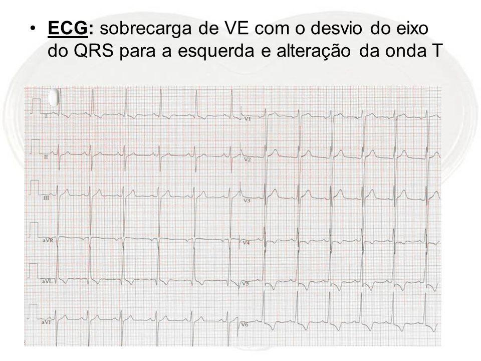 ECG: sobrecarga de VE com o desvio do eixo do QRS para a esquerda e alteração da onda T