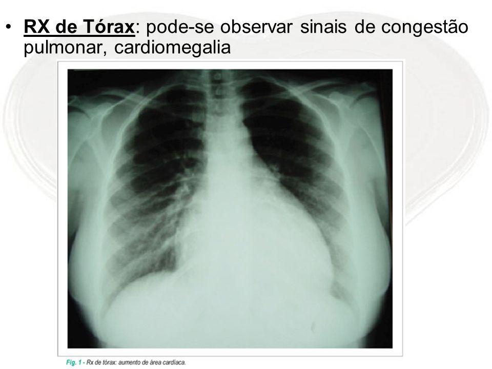 RX de Tórax: pode-se observar sinais de congestão pulmonar, cardiomegalia