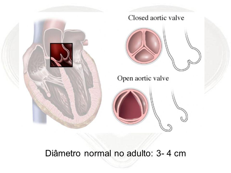 Diâmetro normal no adulto: 3- 4 cm