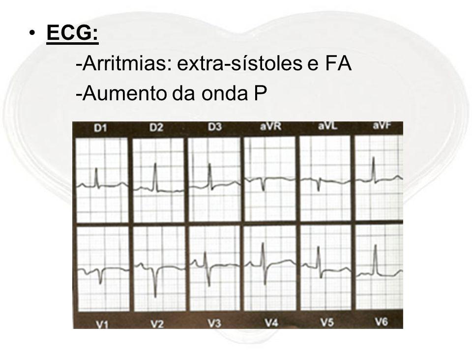 ECG: -Arritmias: extra-sístoles e FA -Aumento da onda P