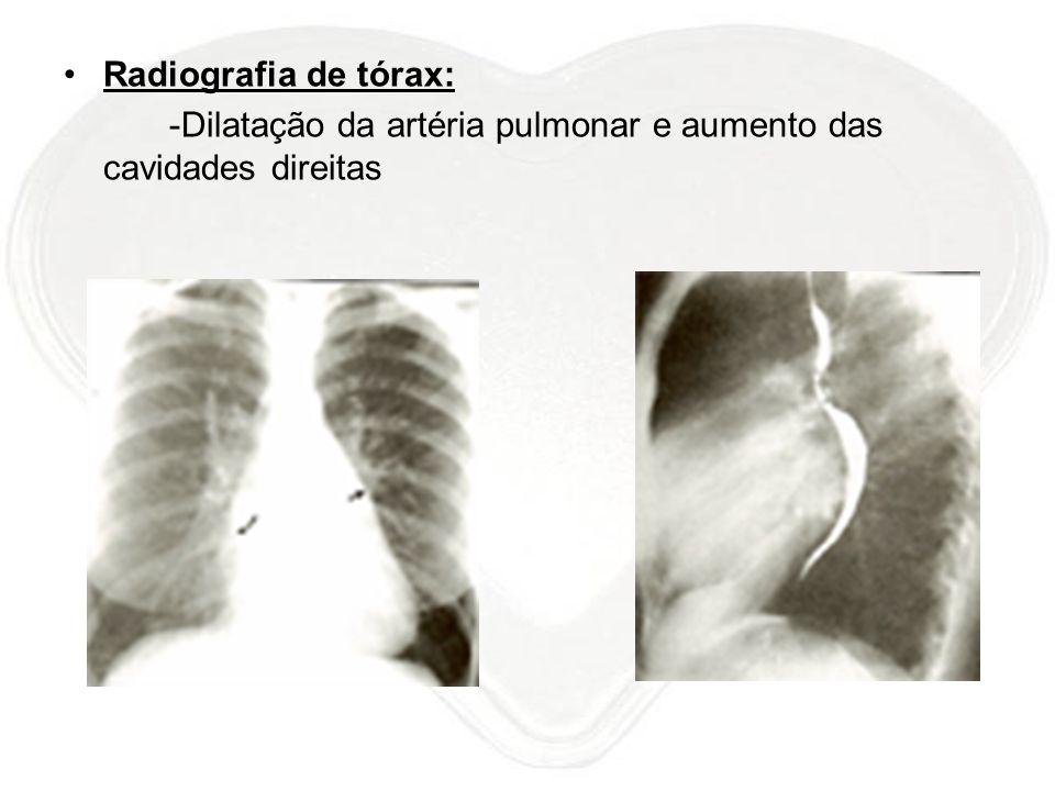Radiografia de tórax: -Dilatação da artéria pulmonar e aumento das cavidades direitas