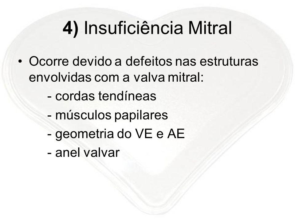 4) Insuficiência Mitral Ocorre devido a defeitos nas estruturas envolvidas com a valva mitral: - cordas tendíneas - músculos papilares - geometria do