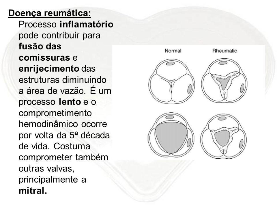 Doença reumática: Processo inflamatório pode contribuir para fusão das comissuras e enrijecimento das estruturas diminuindo a área de vazão. É um proc