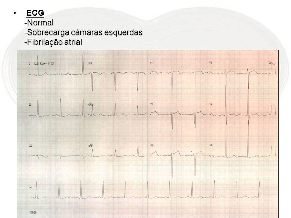 ECG-Normal -Sobrecarga câmaras esquerdas -Fibrilação atrial
