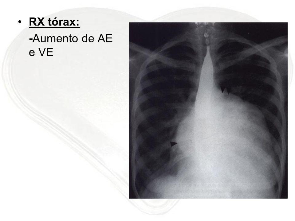 RX tórax: -Aumento de AE e VE