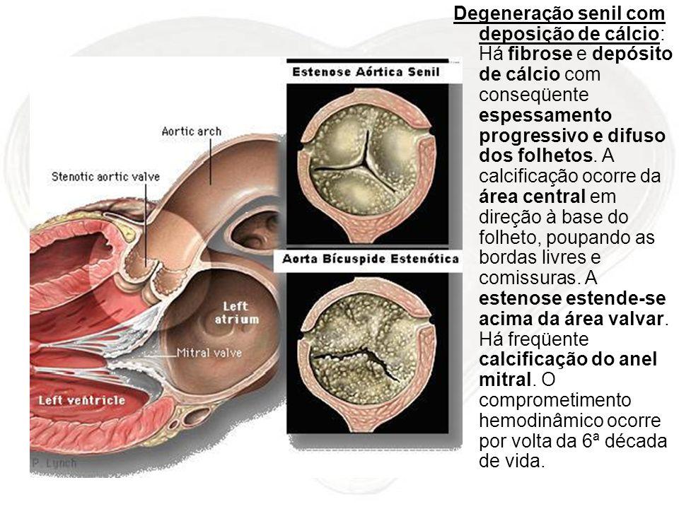 Degeneração senil com deposição de cálcio: Há fibrose e depósito de cálcio com conseqüente espessamento progressivo e difuso dos folhetos. A calcifica