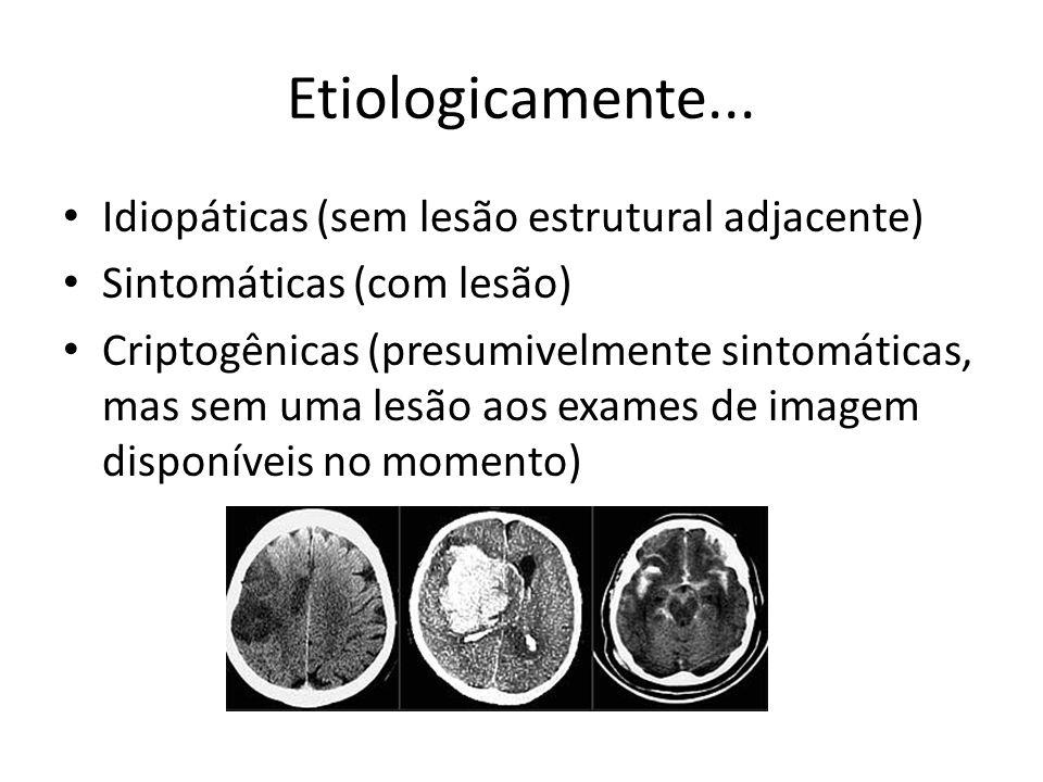 Etiologicamente... Idiopáticas (sem lesão estrutural adjacente) Sintomáticas (com lesão) Criptogênicas (presumivelmente sintomáticas, mas sem uma lesã