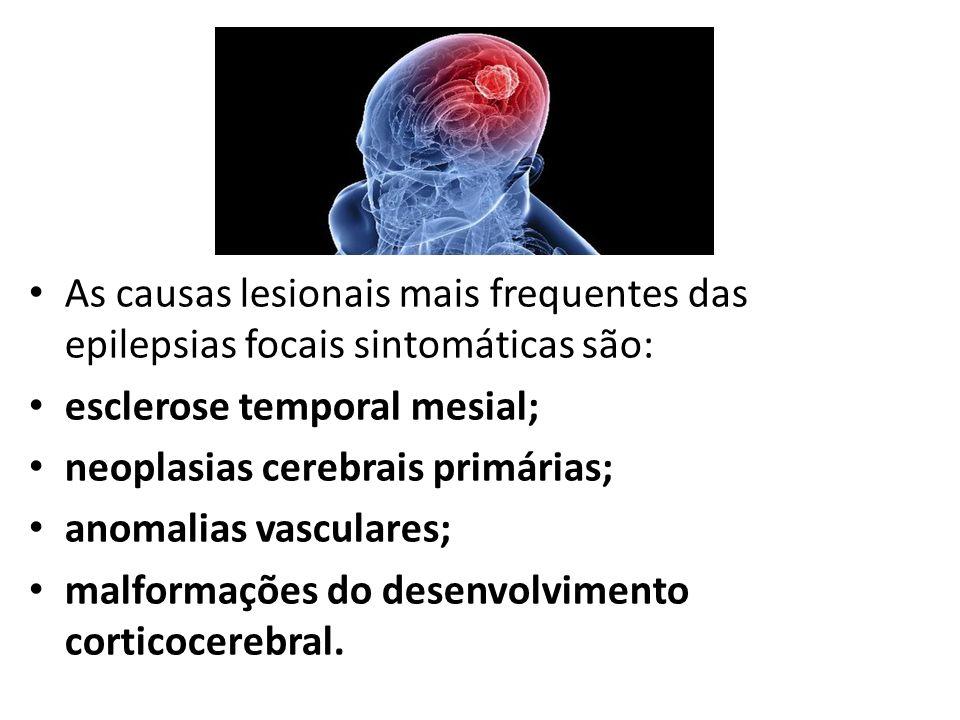 As causas lesionais mais frequentes das epilepsias focais sintomáticas são: esclerose temporal mesial; neoplasias cerebrais primárias; anomalias vascu